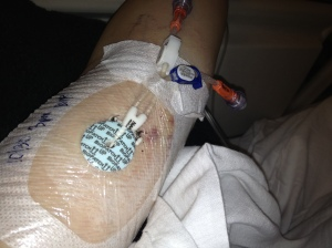 My PICC line allows me to receive strong antibiotics and nutritional support during my last hospitalization.
